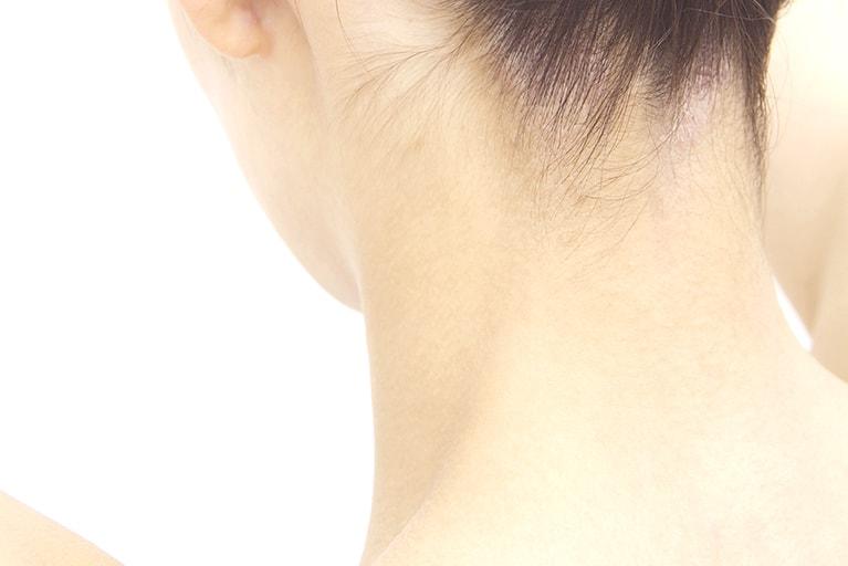 【首の痛み】(寝違い、むち打ち)